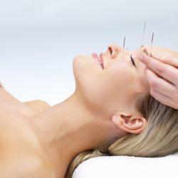 acupuntura Zona Norte