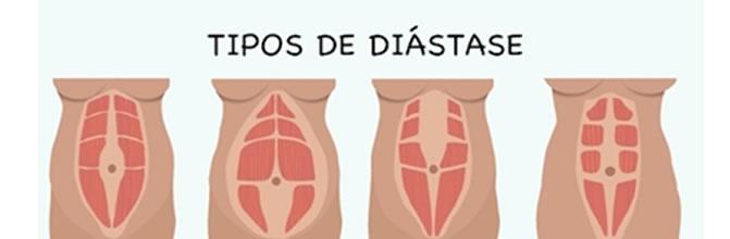 diastase_pilates_1